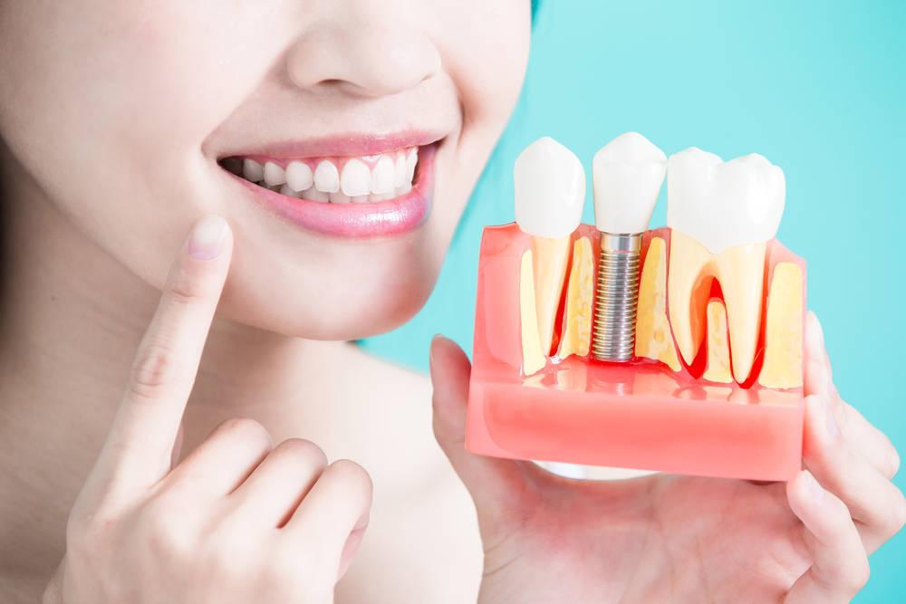 Vuelve a lucir tu mejor sonrisa con un implante dental